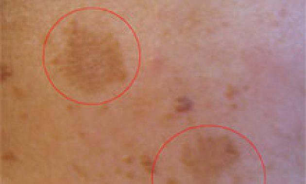 masalah kulit selama kehamilan